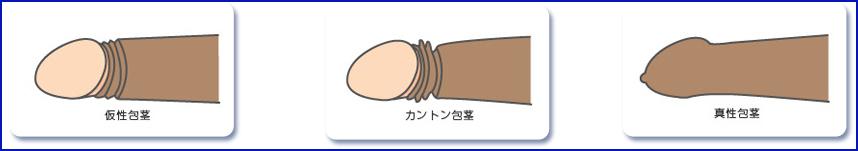 仮性包茎カントン包茎真性包茎