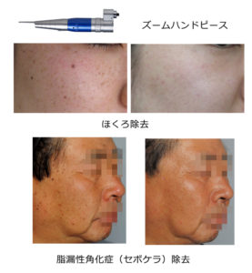 ほくろ除去-脂漏性角化症(セボケラ)除去