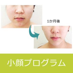 小顔プログラム