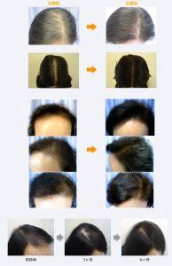 女性薄毛治療症例写真
