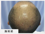 AGA男性脱毛症