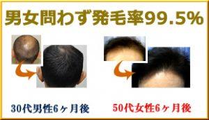 男女問わず発毛率99.5%
