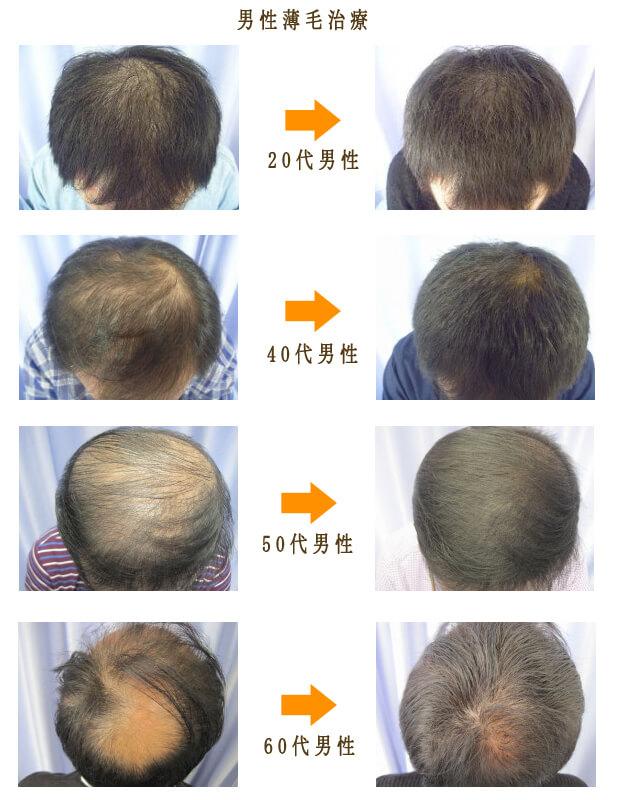 男性薄毛治療症例画像