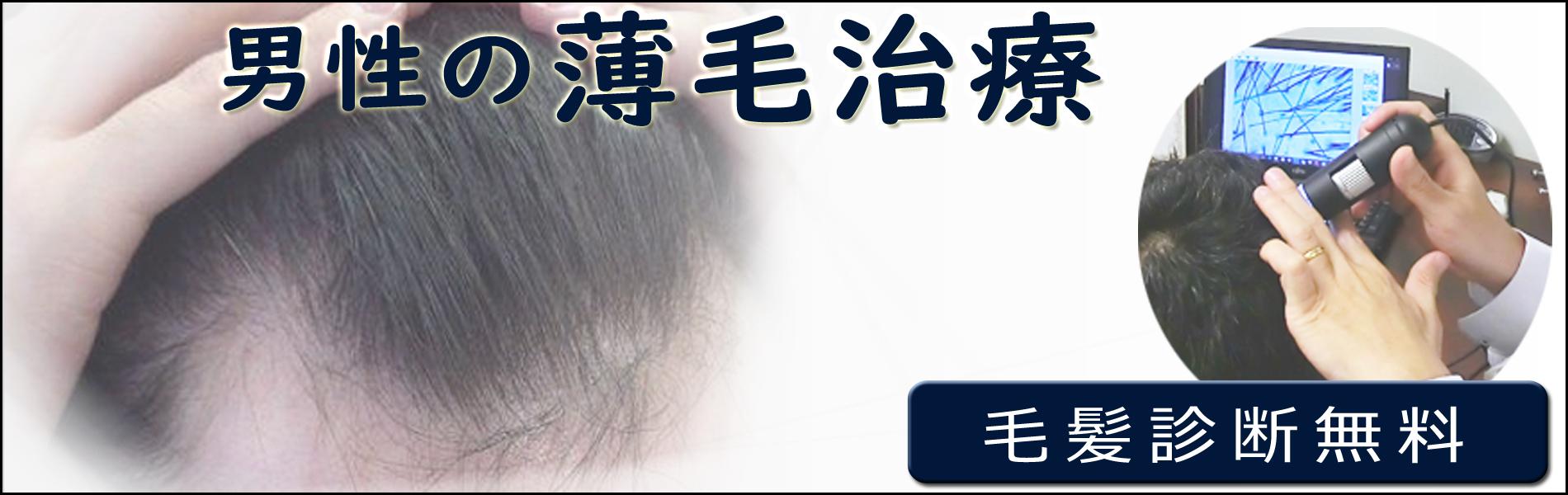 男性のAGA治療